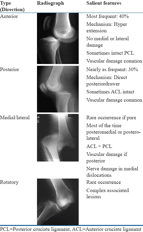 kennedy knee injury classification system